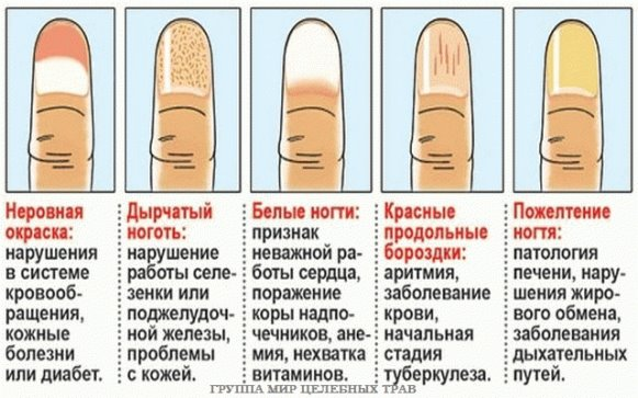 Ногти болезни организма