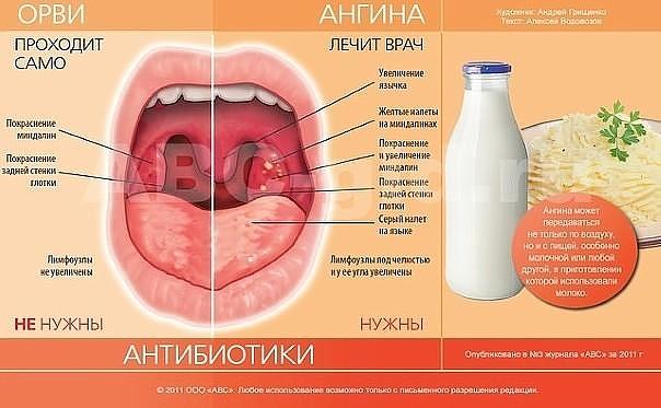 Тонзиллит симптомы лечение в домашних условиях