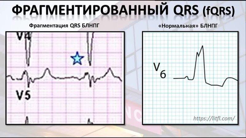 Фрагментация QRS – ЭКГ высокого риска. Определение, механизмы возникновения, кли