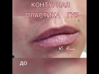Контурная пластика губ .
