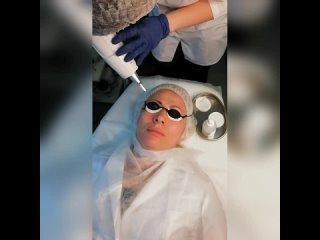 NdYag - лазер для удаления татуажа, перманентного макияжа и тату
