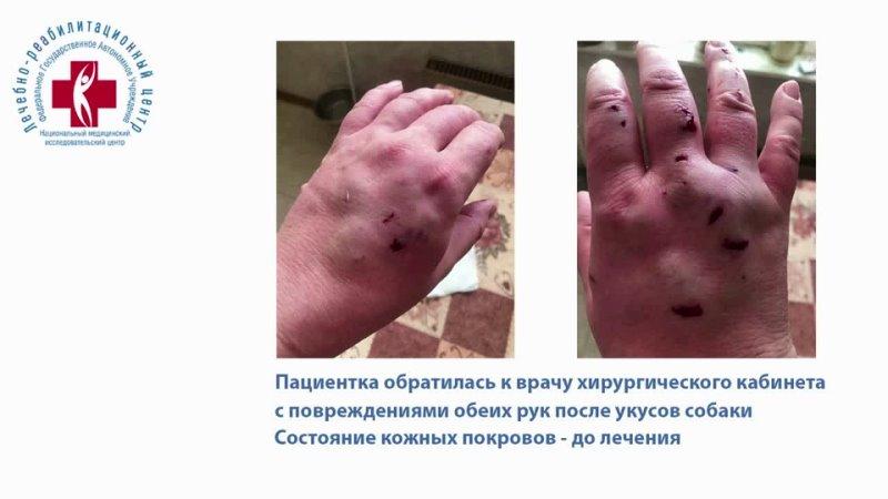 ✅Отзыв пациентки Марии Т о лечении в хирургическом кабинете поликлиники ФГАУ НМИЦ ЛРЦ Минздрава России