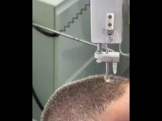 А вот так аппарат осуществляет пересадку волос под местной анестезией.