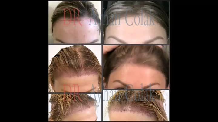 Пересадка волос у женщин. Клиника доктора Айхан Чолак