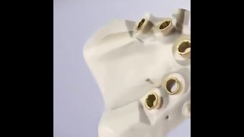 Больно ли ставить имплант