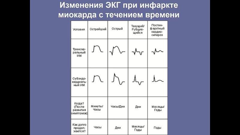 ЭКГ-диагностика при подозрении на инфаркт миокарда
