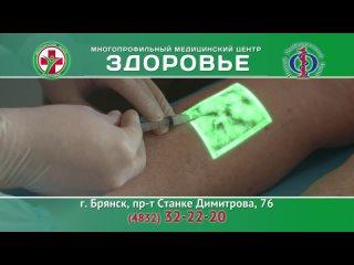 Передовые методики лечения заболеваний вен в Медицинском центре «Здоровье» г.Брянск