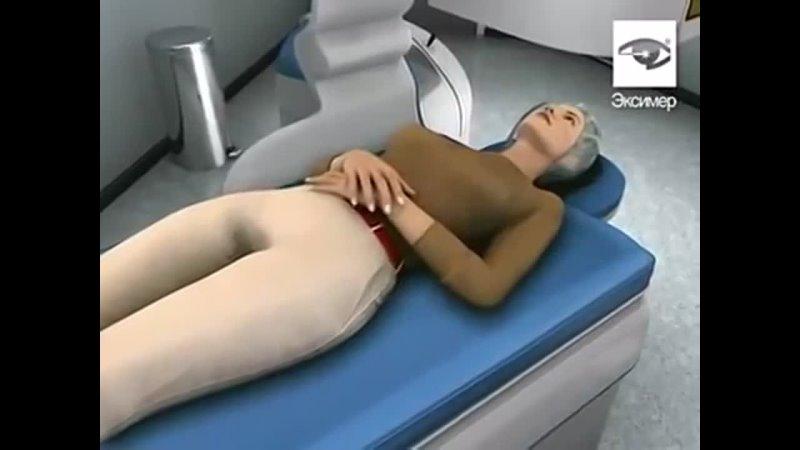 Excimer Clinic Как проходит лазерная коррекция зрения Клиника Эксимер
