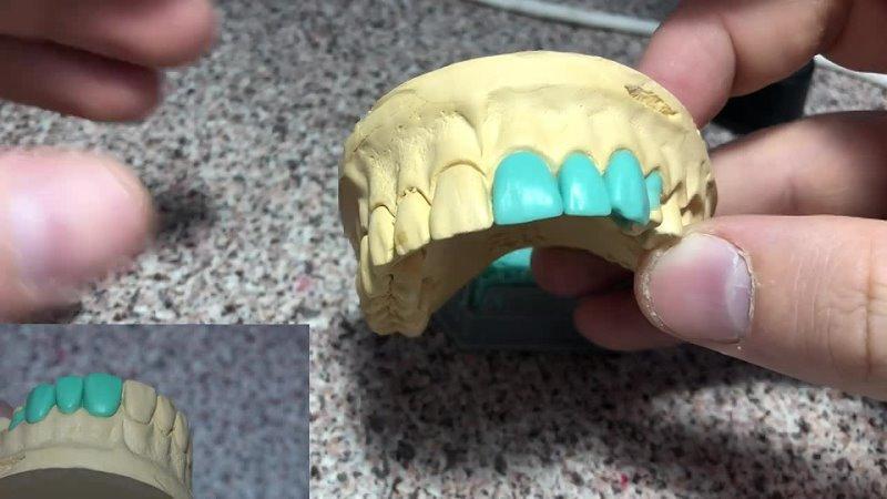 [Sattar Ibragimov] Моделировка зубов. Как моделировать 1й премоляр верхней челюсти