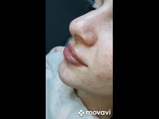 УВЕЛИЧЕНИЕ ГУБ без боли|hyaluron pen|ВОРОНЕЖ kullanıcısından video