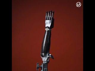 Бионический протез руки: ТО для киберчеловека