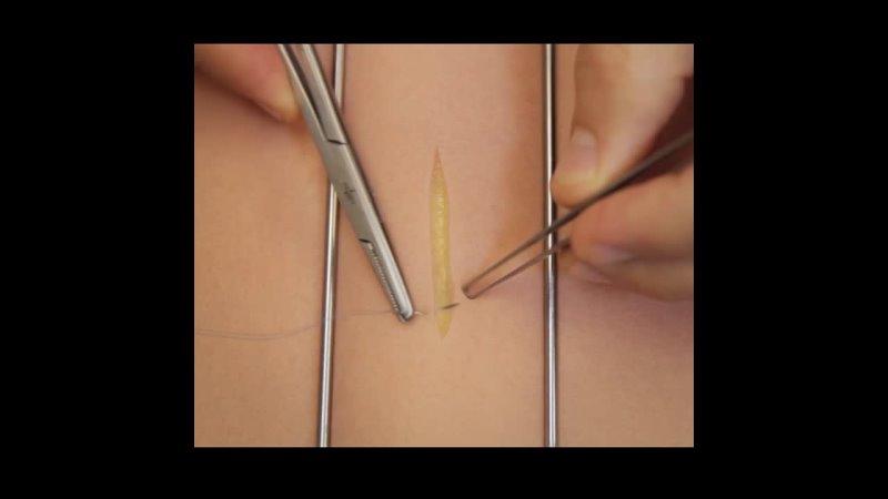 Видео от Cor Medicale