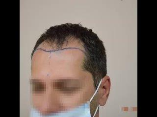 Пересадка волос в Турции. Доктор Айхан Чолак