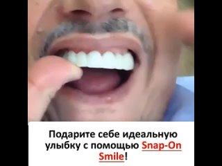 Съемные виниры Snap-On Smile (490 руб.)