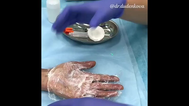 Гипергидроз ладоней в БЕТТА КЛИНИКА mp4