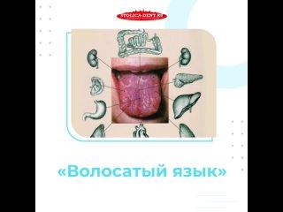 Лечение заболевания языка. Клинический случай — гипертрофия сосочков языка