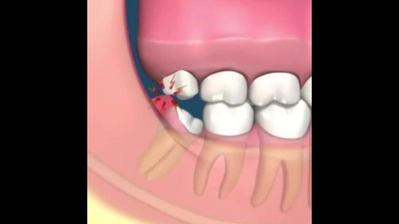 Видео от ХОРОШАЯ СТОМАТОЛОГИЯ Стоматологическая клиника