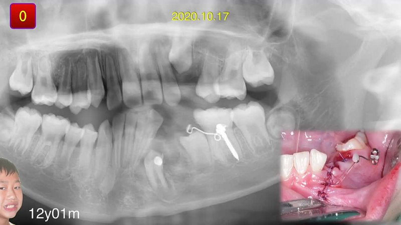 Chris Chang Ortho Simplified Mechanics for Aligners in Treating Complex Cases Part5