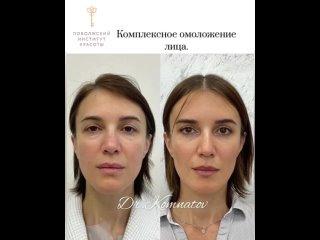Видео от Поволжский Институт Красоты