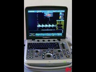 Видео от RH – УЗИ аппараты, комплектующие, датчики