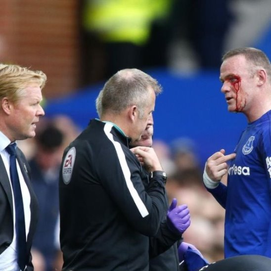 Боец 💪#Rooney