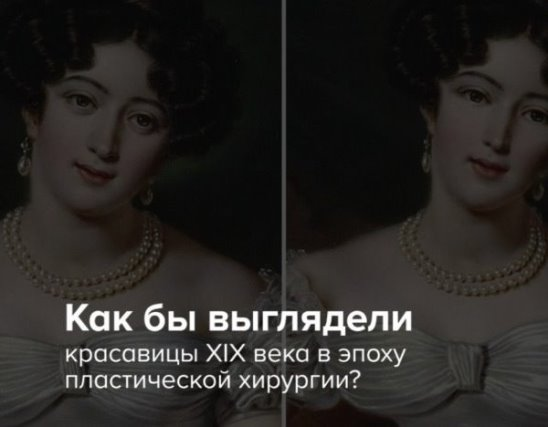 Как бы выглядели красавицы XIX века в эпоху пластической хирургии
