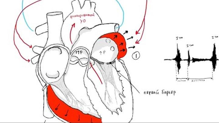 Обложка видеозаписи Митральный стеноз.