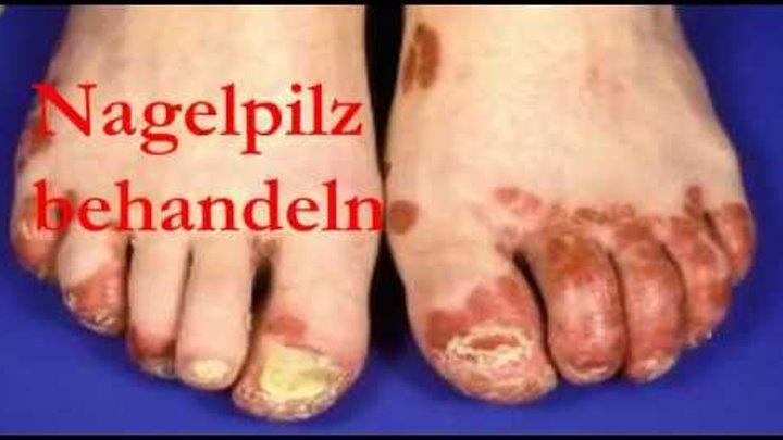 Behandeln schnell nagelpilz Nagelpilz schnell