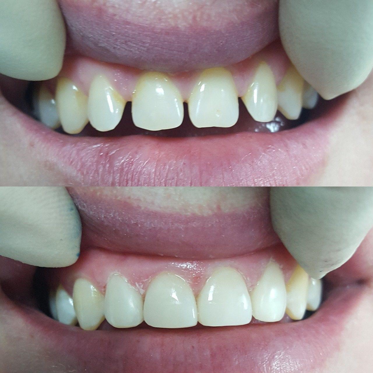картинка нет зуба нет проблемным зонам давно