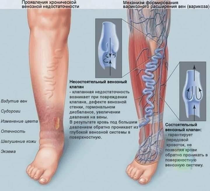 boli distrofice ale articulațiilor