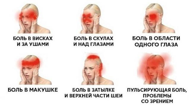Гидрокортизон для лечения бурсита