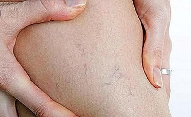 boli ale articulațiilor gleznei