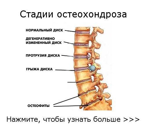 Мази от боли суставов рук