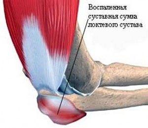 Мази от воспаления суставов рук