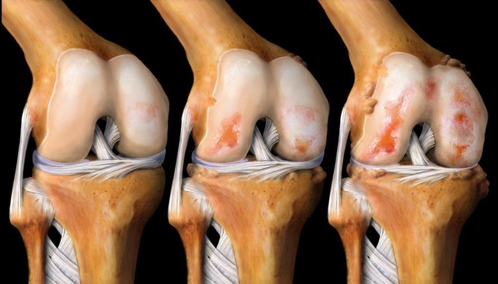 Острый приступ артрита коленного сустава фото