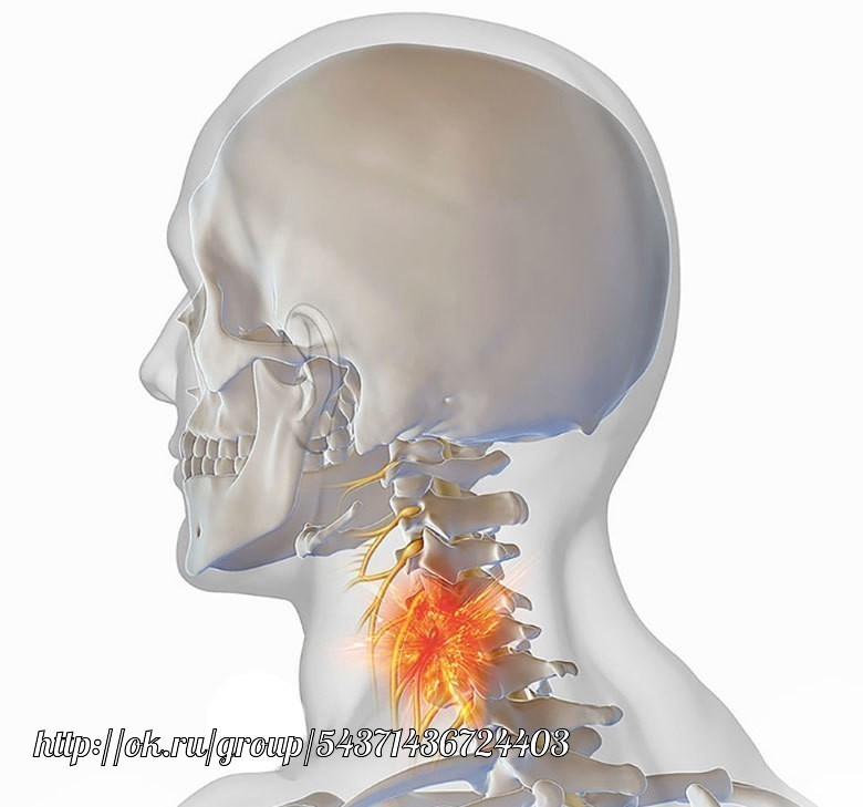 Проприоцептивное головокружение при шейном остеохондрозе фото