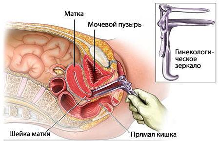 zhenshina-na-ginekologicheskom-osmotre-video