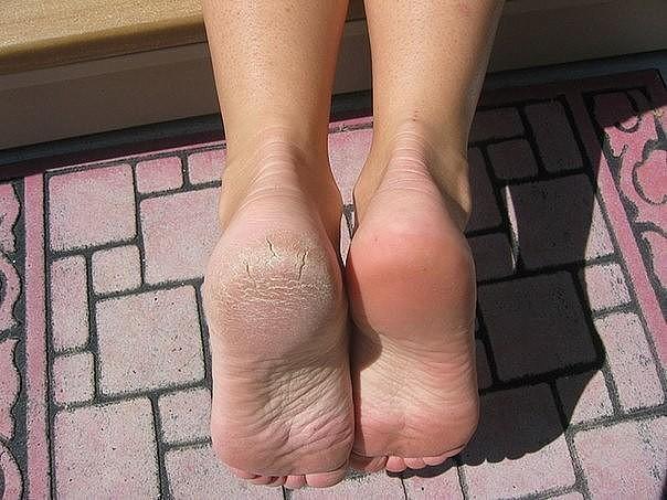 Облизал каждый пальчик ног фото 484-891