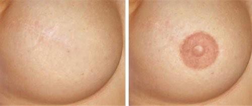 Женщины с сосками фото фото 494-805