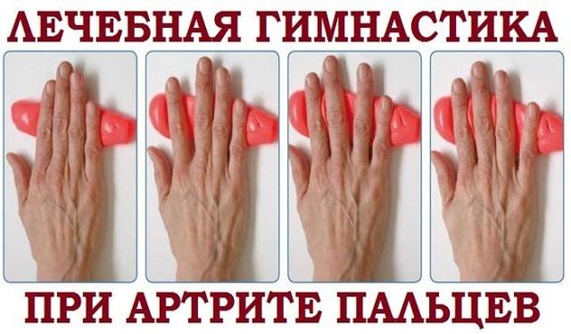 Гимнастика при артрите пальцев рук — одно из средств лечения