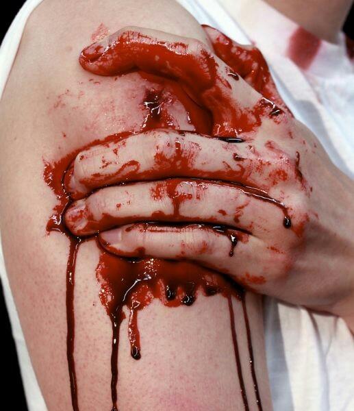 раны глубокие фото