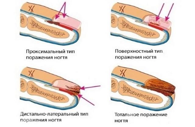 Эффективные средства от грибка ногтей на ногах.
