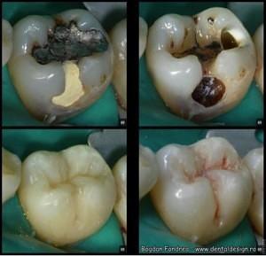 Tratamentul artritei cu medicamente x