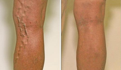 Упражнения для лечения варикозного расширения вен на ногах