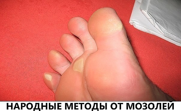 tabletki-ot-tsistita-kakie-luchshe