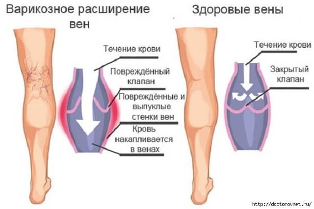 Препараты при варикозном расширение вен на ayimacollection.ru