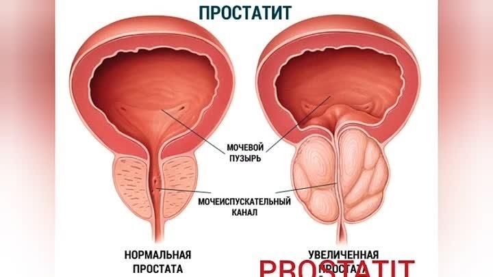 Mi segített neked a prosztatitisből
